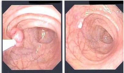 vastagbélpolip rák helmintagyertyák terhes nők számára
