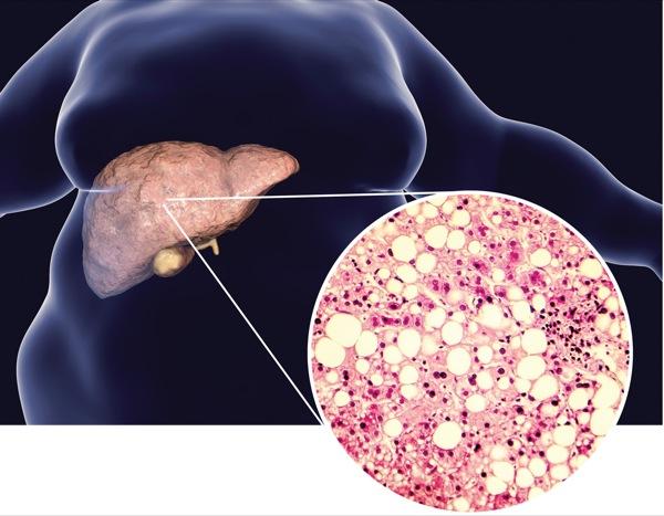 zsíros máj- és cukorbetegség-diéta